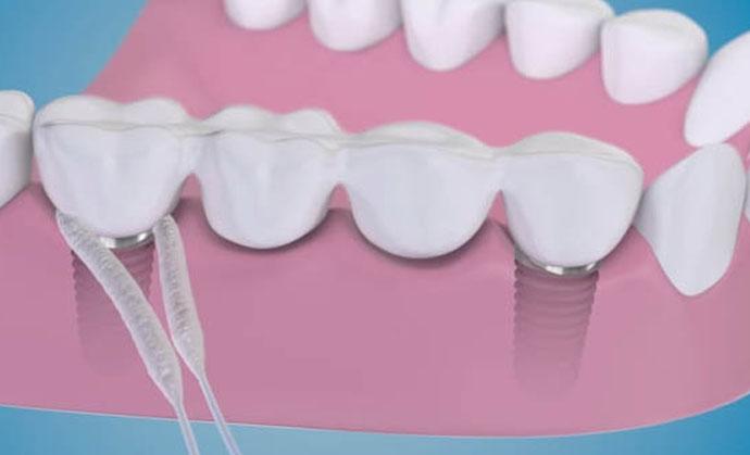Care sunt legăturile dintre dinții sănătoși și pierderea în greutate