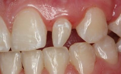 anomalii dentare de forma