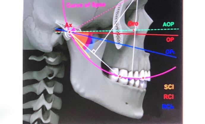 probleme articulatii maxilar)