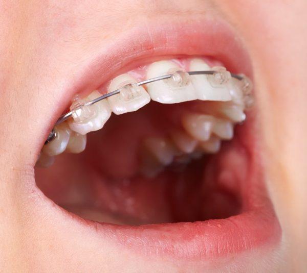 Aparat ortodontic safir