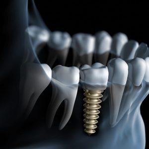 Implant denta bucuresti Zimmer
