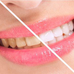 albire dentara bio
