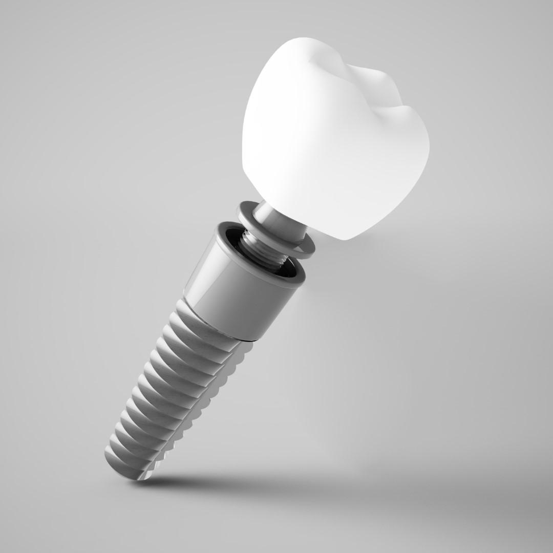 implant dentar bucuresti preturi