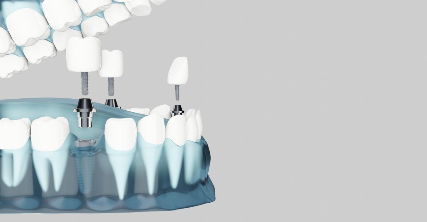 implant dentar dupa extractie