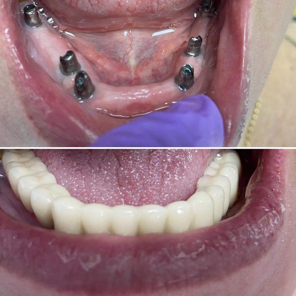 implant dentar final