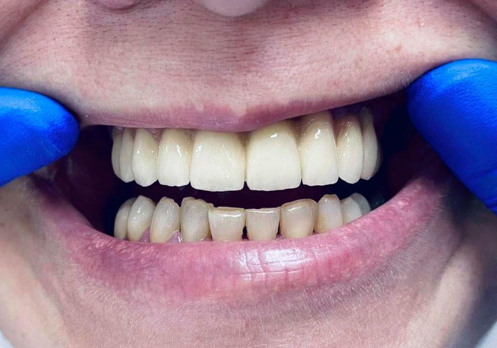 implant dentar mandibula