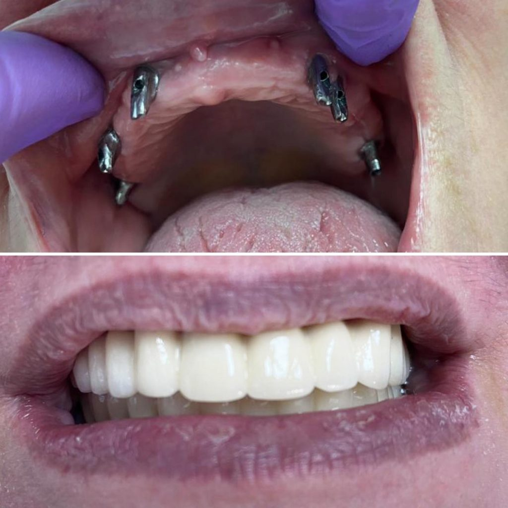 implant dentar maxilar