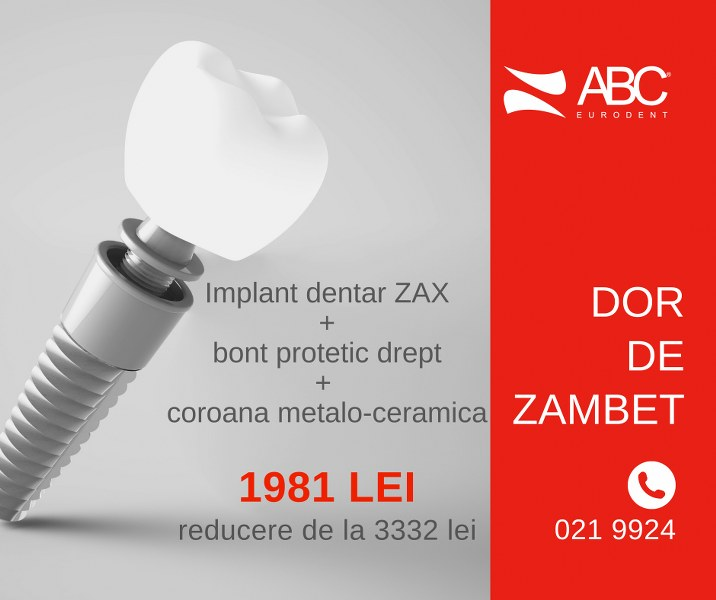 Oferte implant dentar