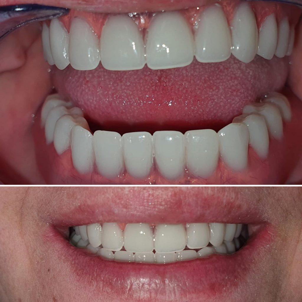 restaurare orala implant
