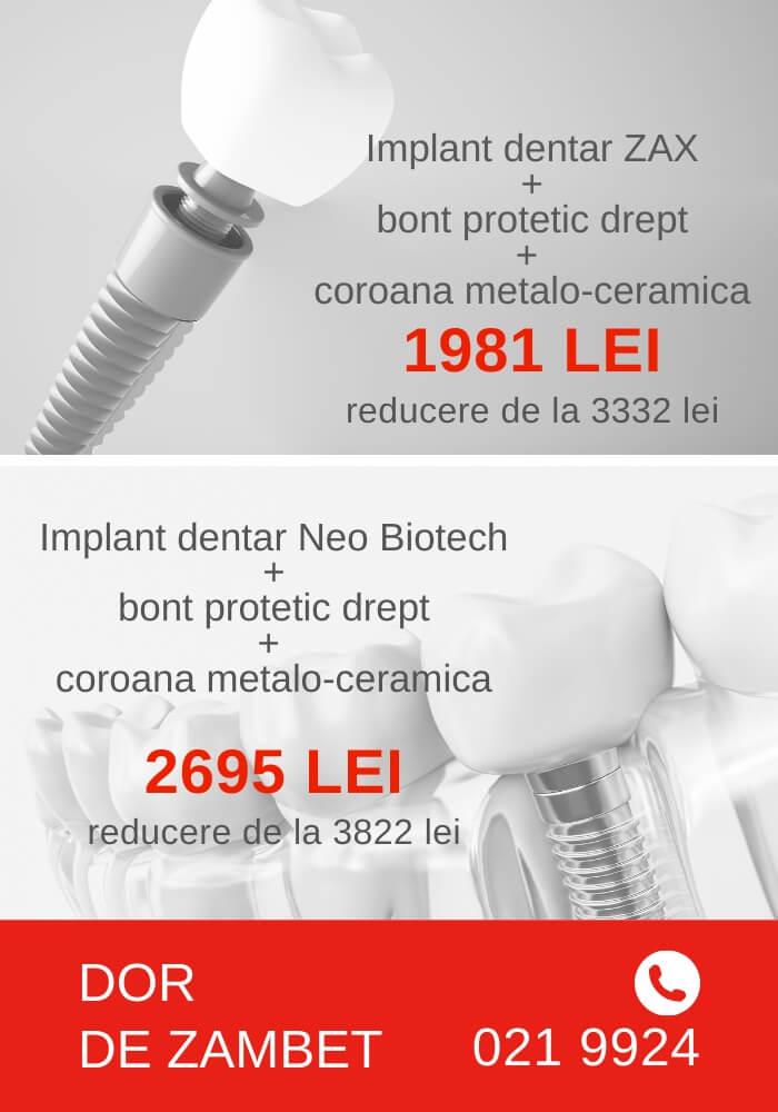 implant dentar oferta