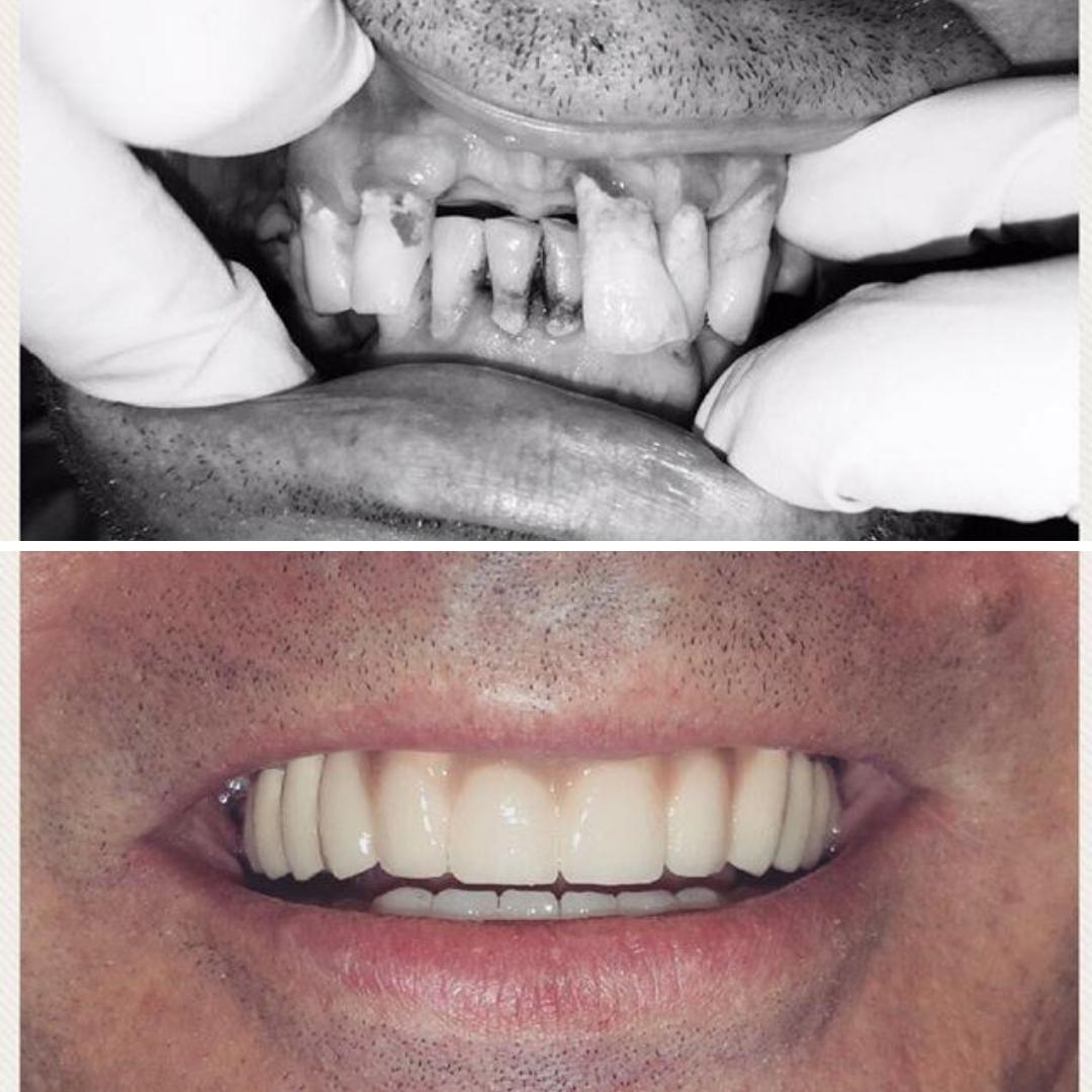 implant dentar complet