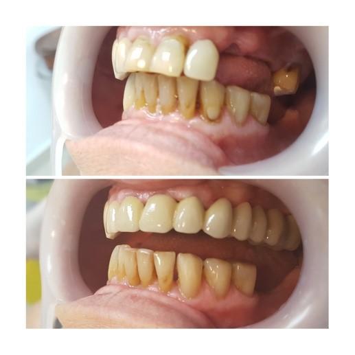 pret coroana dentara