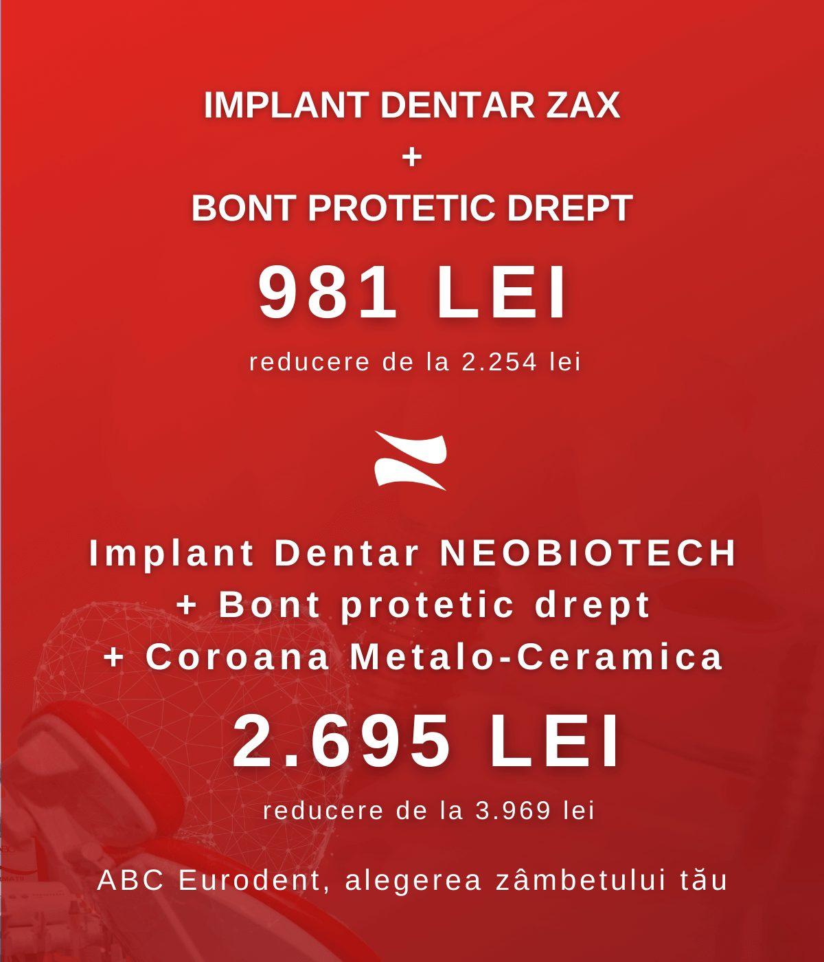 pret implant Bucuresti 2021