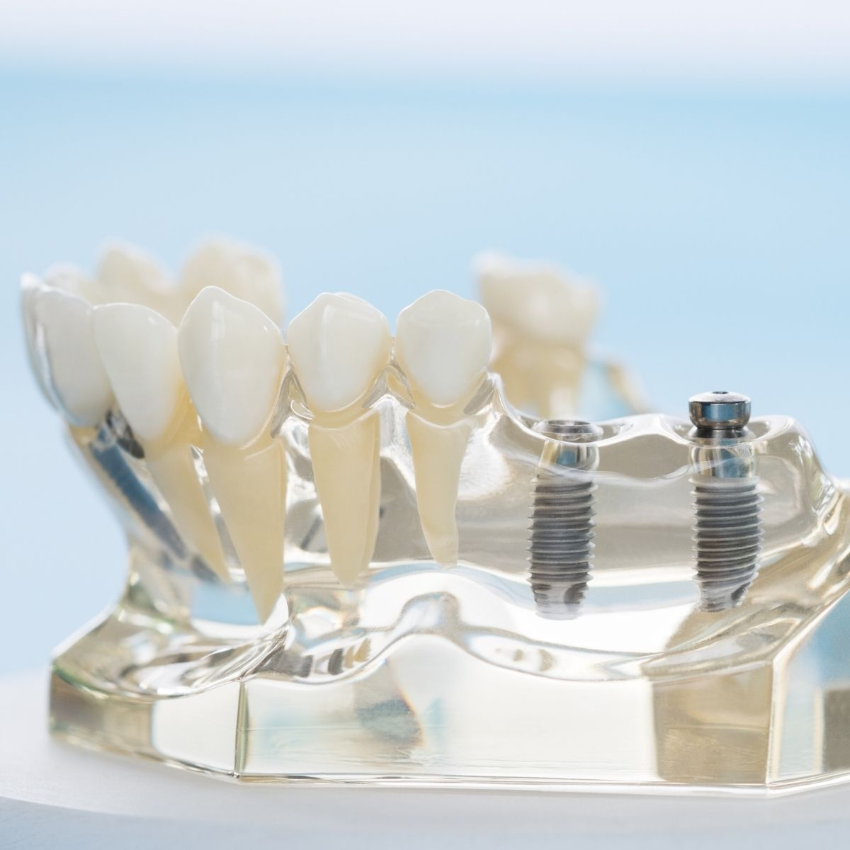 implant dentar ieftin Bucuresti