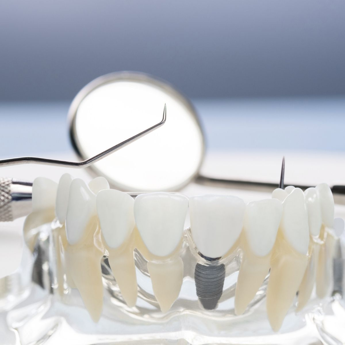 implant dentar ieftin Bucuresti 2021