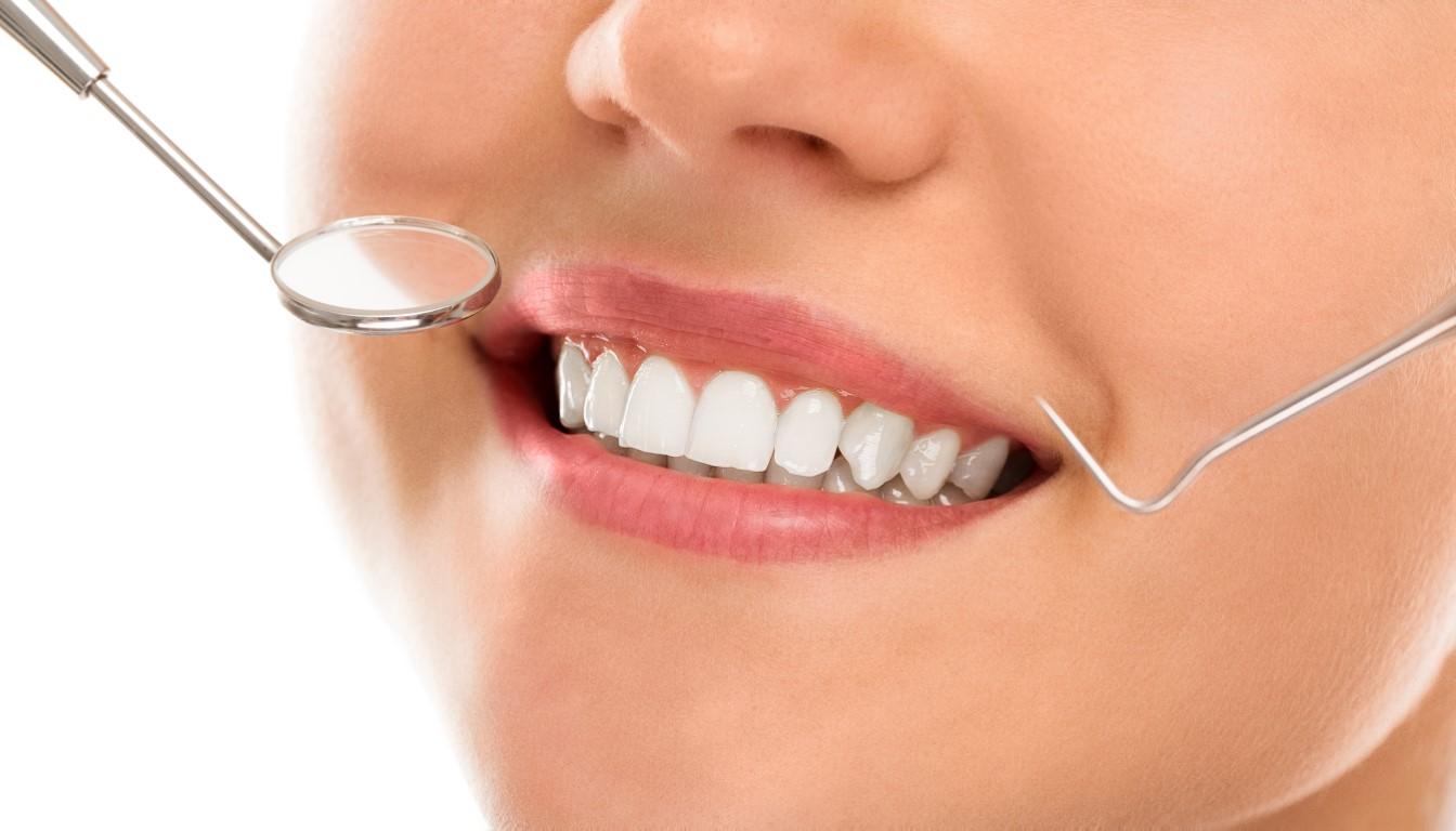 plombe dentare estetice aspect natural