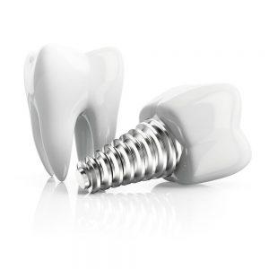 implant dentar ARDS